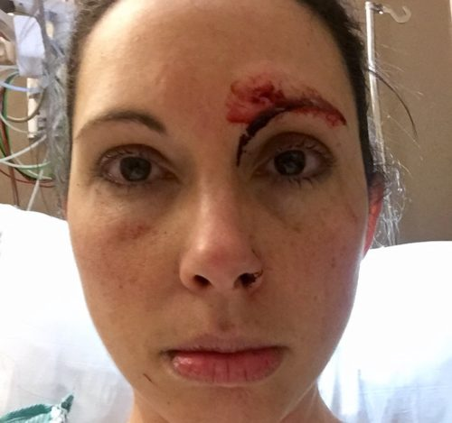 Woman who fought off attacker fights back against political campaign