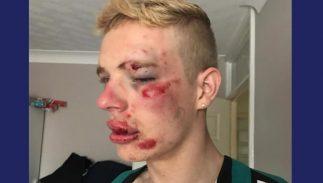 ryan-williams-injuries-323x183.jpg