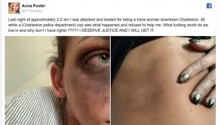 Trans woman says a police officer saw her being severely beaten & did nothing