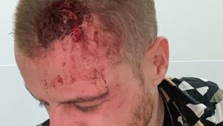 Gay man needed 5 staples in his head after he was attacked for kissing another man