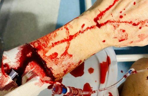 Joseph Stanislav's arm injuries.