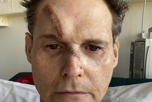 Joseph Stanislav's facial scars.