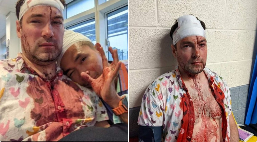 """Gay couple & their female friend brutally bashed by gang high on """"hippy crack"""""""