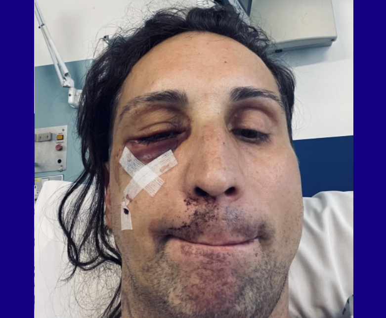 Gay man was nearly killed when thug pounded him with hammer in vicious mob attack