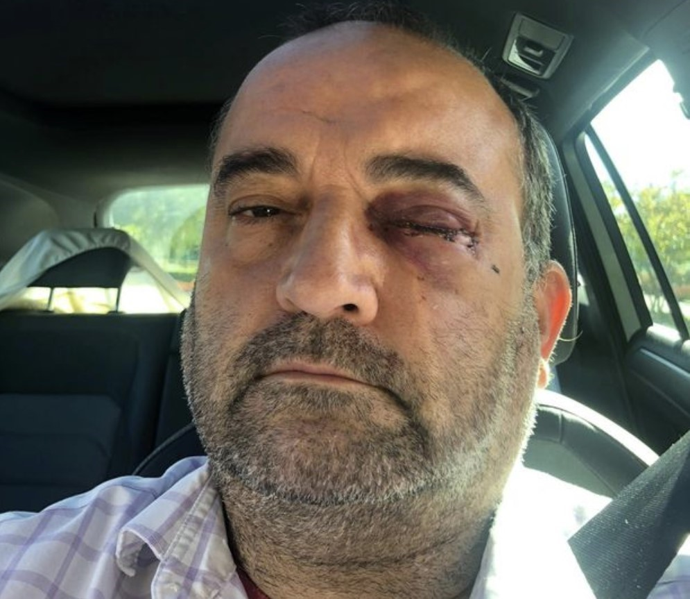Man knocked unconscious & could lose sight in vicious anti-gay hate attack